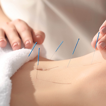 Acupuncture - Services
